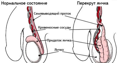Признаки перекрута яичка