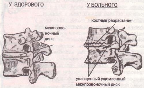 Признаки шейного спондилеза
