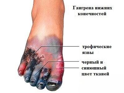 Признаки сухой гангрены ног
