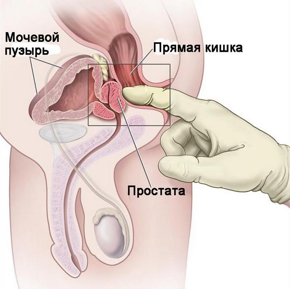 Ректальная пальпация предстательной железы