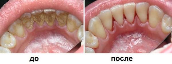 Результат ультразвуковой чистки зубов