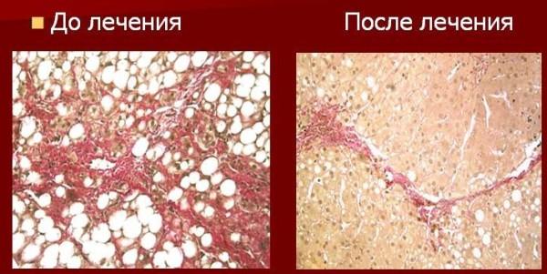 Результаты лечения алкогольного гепатита