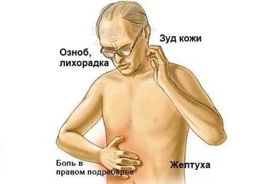 Симптомы гепатита G