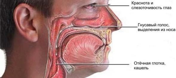 Симптомы гнойного ринита