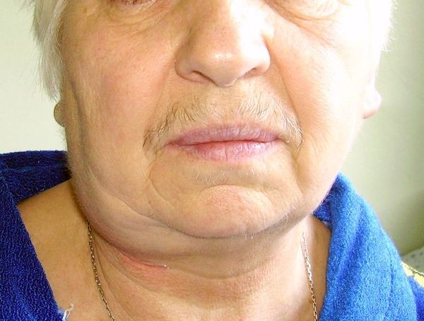 Симптомы кисты шеи
