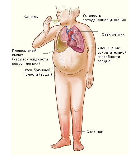 Симптомы левожелудочковой недостаточности