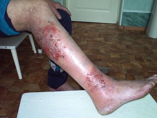 Симптомы микробной экземы на ногах