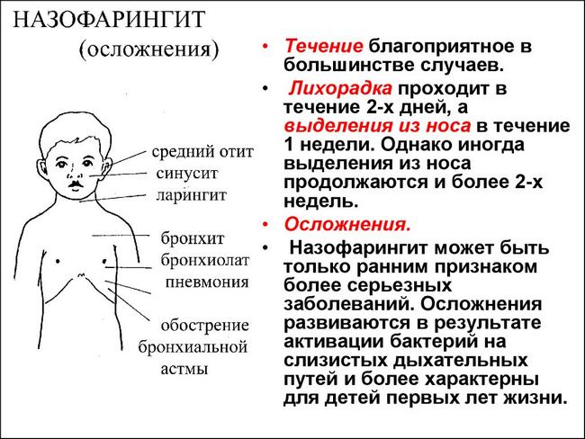 Острый назофарингит у взрослых