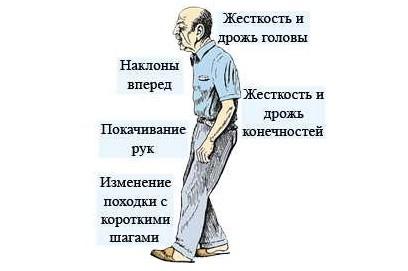 Симптомы паркинсонизма