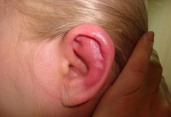Симптомы перихондрита ушной раковины