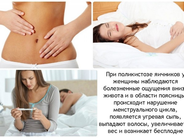 Симптомы поликистоза яичников