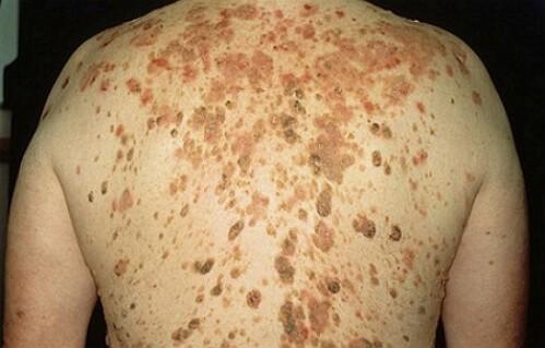 Симптомы себорейного кератоза