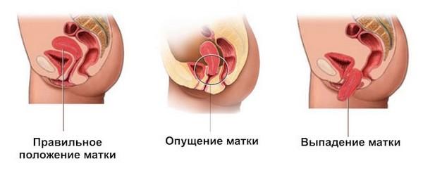 Симптомы выпадения матки