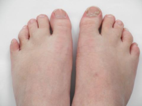 Синдактилия пальцев ног