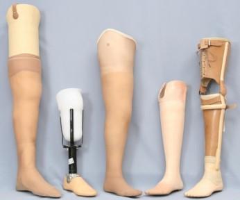 Современные виды протезов нижних конечностей