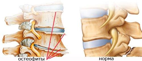 Спондилез грудного отдела позвоночника