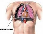 Спонтанный пневмоторакс