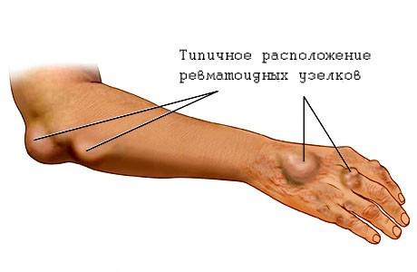 Типичное расположение ревматоидных узелков