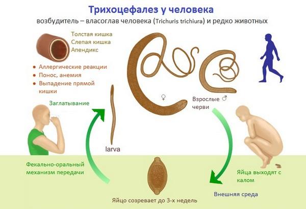 Трихоцефалез у человека