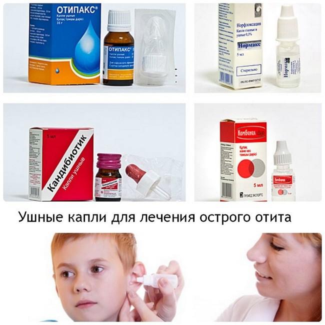 Отит у детей чем лечить в домашних условиях 164