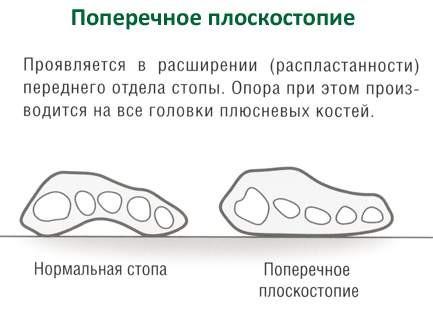 Вид нормальной и плоской стопы