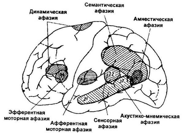 Виды афазий в зависимости от локализации поражения больших полушарий