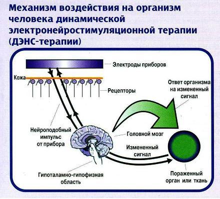 Электронейростимуляция