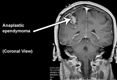 Эпендимома на рентгене