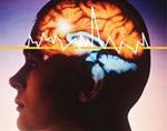 Эпилептический статус