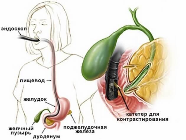 Спазм сфинктера одди симптомы