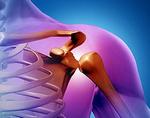 Остеобластокластома