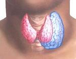 Папиллярная карцинома