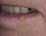 Плоскоклеточная карцинома