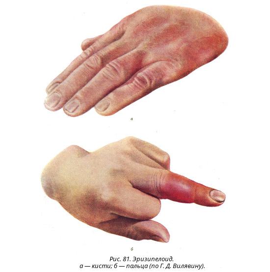 Проявления эризипелоида