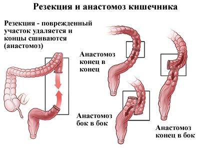 Что такое трансверзоптоз кишечника