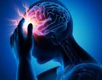 Симптоматическая эпилепсия