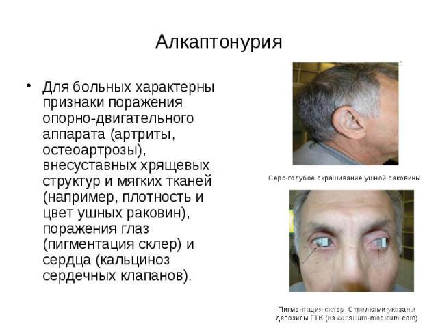 Симптомы алкаптонурии