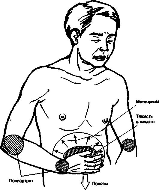 Симптомы болезни Уиппла