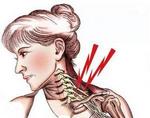 Синдром лестничной мышцы
