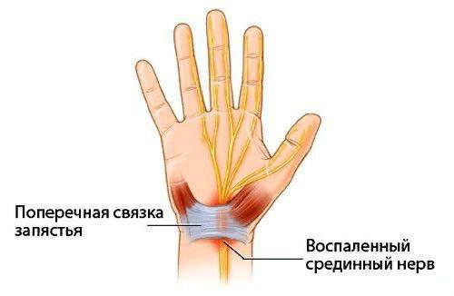 Изображение - Стилоидит лучезапястного сустава к какому врачу обратиться stiloidit-zapyastya