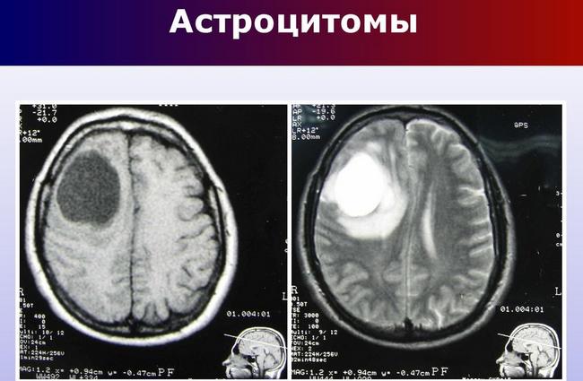 Выявление астроцитомы с помощью МРТ