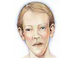 Синдром Сотоса