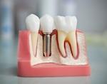 Особенности и выбора и установки зубных имплантатов