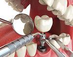 Методы имплантации зубов: выбираем методику протезирования