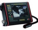 Выбираем УЗИ-сканер: рекомендации профессионалов