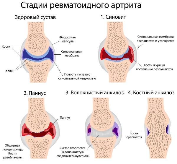 Стадии ревматоидного артрита