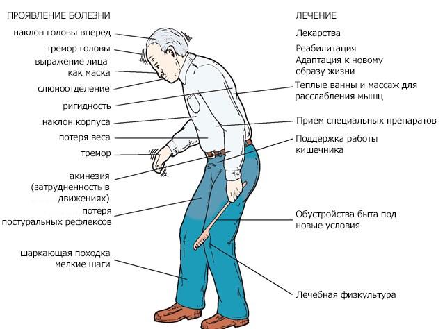 Болезнь паркинсона лечить в домашних условиях