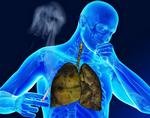 Как очистить легкие от никотина, пыли и мокроты