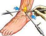 Артроскопия коленного сустава что это