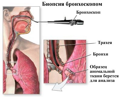 Фибробронхоскопия что это такое народная медицина артроз компресс